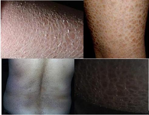 蛇皮的治疗方法_南昌中山皮肤病医院